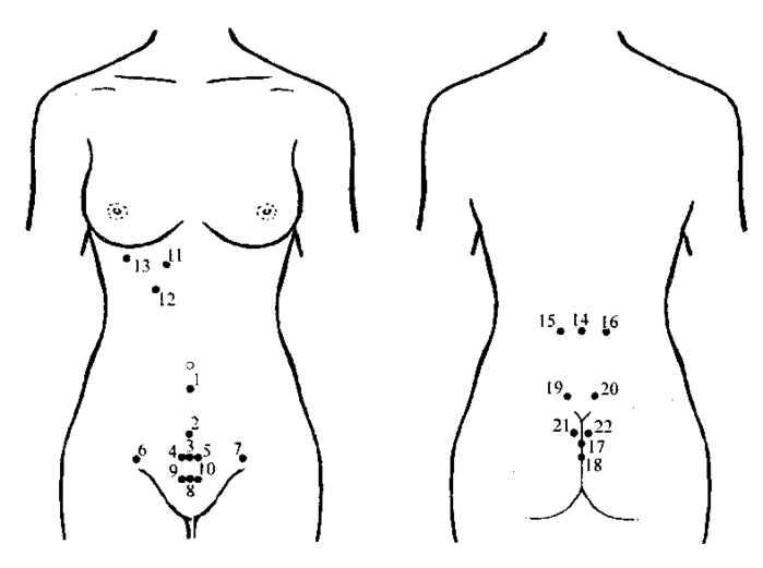 схема пиявок гинекология (700x521, 52Kb)