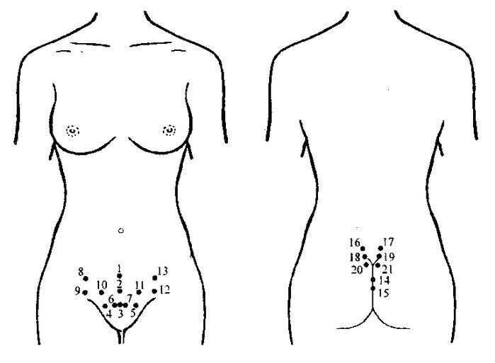 В результате перенесенного воспаления придатков или аборта в органах малого таза нередко развивается спаечный процесс...