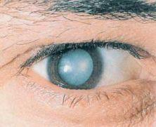 3970017_eye_kataract_jpg_322x181_1_ (222x181, 9Kb)