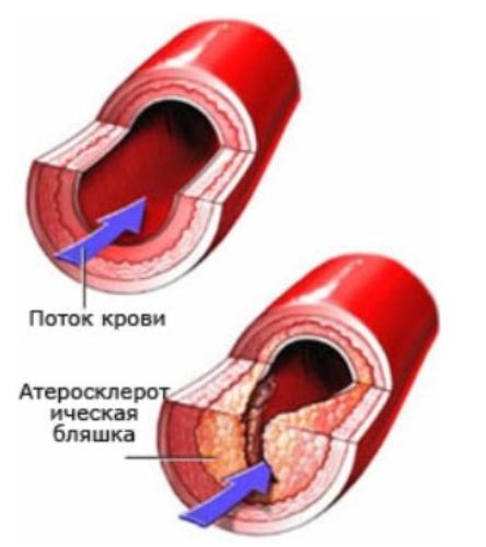 Атеросклероз jpg (444x500, 78Kb)