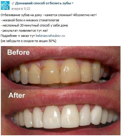 Отбеливание зубов в домашних условиях содой рецепт