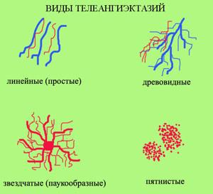 teleangiektazii-02 (300x273, 21Kb)