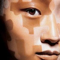 vitiligo (200x200, 8Kb)