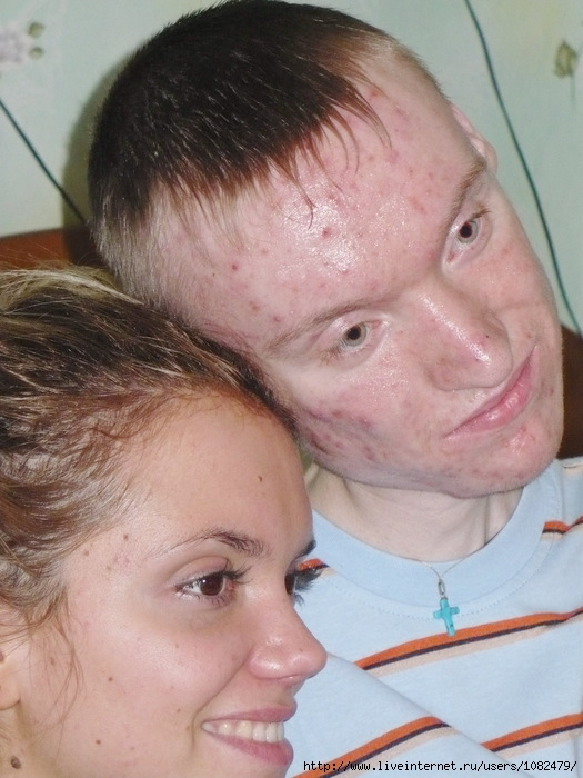 Миопатия фото