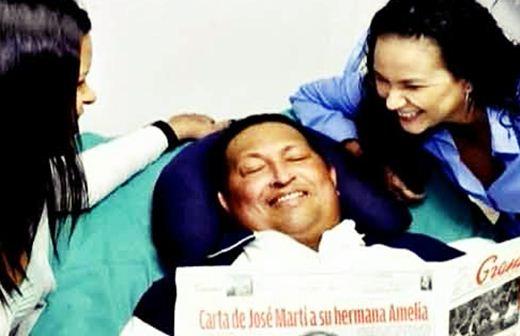 Фотографии Уго Чавеса после удаления раковой опухоли