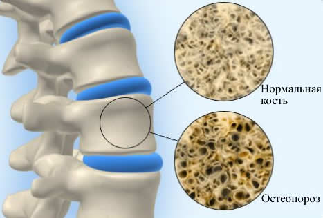 остеопороз (467x316, 19Kb)