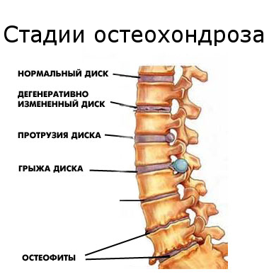 Стадии-остеохондроза (380x394, 134Kb)