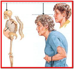 Lechenie-osteoporoza (250x235, 24Kb)