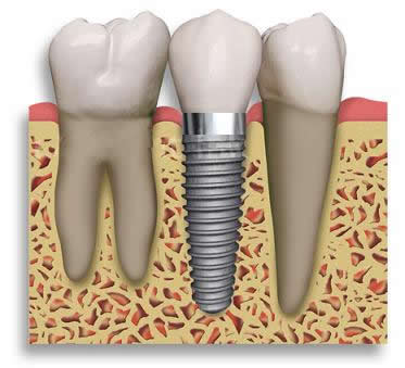 implant_2 (373x339, 20Kb)