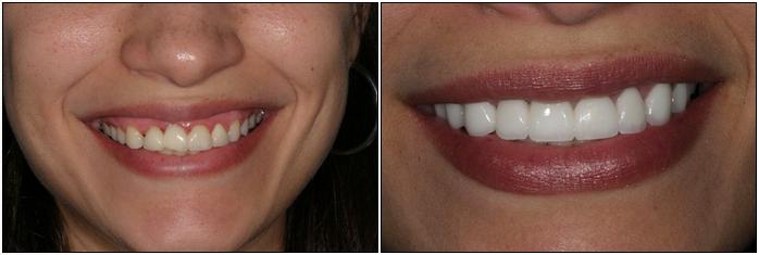 Американские зубные виниры