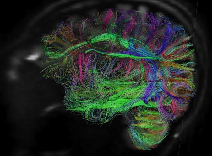 5 умопомрачительных способов, которыми ваш мозг пользуется, чтобы постоянно врать вам/4387736_1 (675x498, 103Kb)