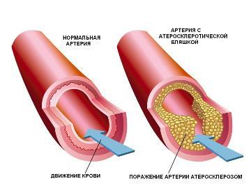 очистить сосуды от плохого холестерина