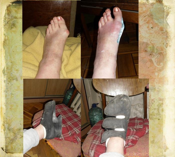 боковая косточка на ноге
