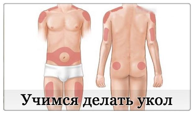 1442997252_uchimsya_delat__ukoluy (622x365, 220Kb)