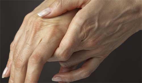 reaktivnyj-artrit (500x294, 11Kb)