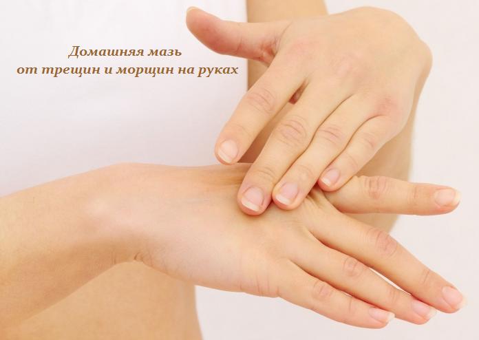 1443803091_Domashnyaya_maz__ot_treschin_i_morschin_na_rukah (696x494, 356Kb)