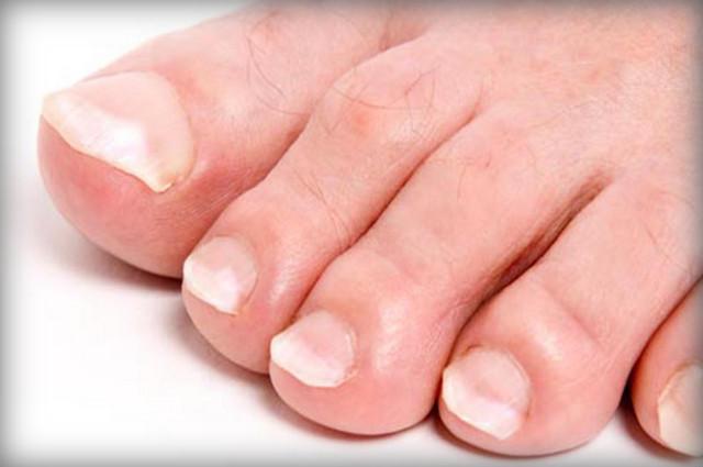 Как я лечил грибок ногтей на ногах