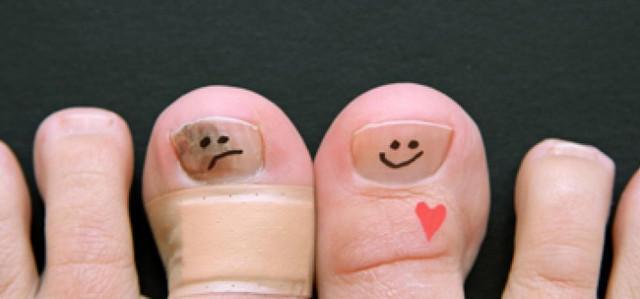 Борозды на ногтях рук причины и лечение