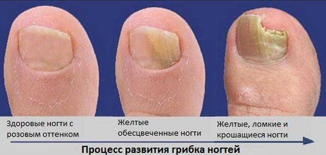 Как лечить ноготь на ноге намятый палец