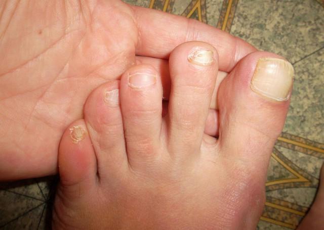 Микозан сыворотка от грибка ногтей отзывы