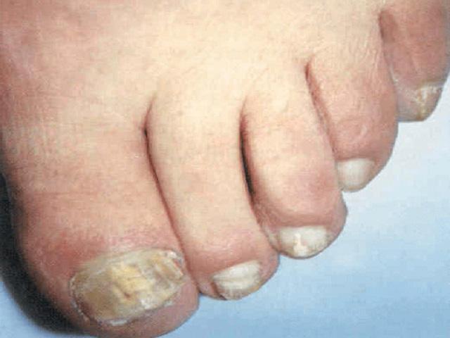 glubokie-mikozi-pri-vich-infektsii
