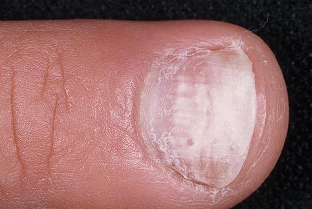 Грибок ногтей куда обращаться минск