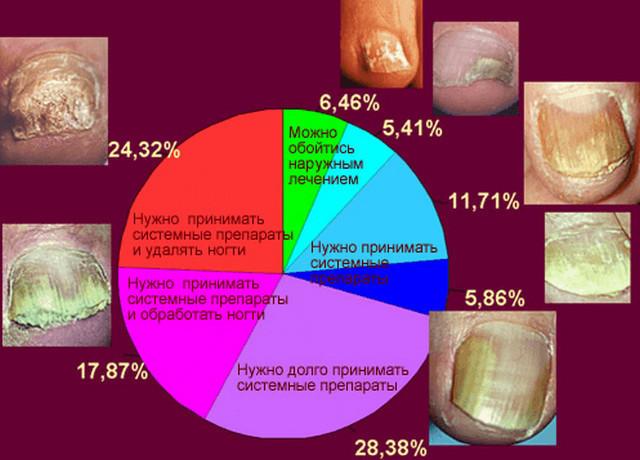 Как лечить грибок ногтей кормящей маме