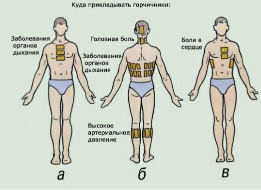 1444238958_kak_stavit__gorchichniki (523x380, 31Kb)