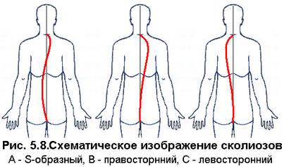 skolioz 34 (403x237, 74Kb)