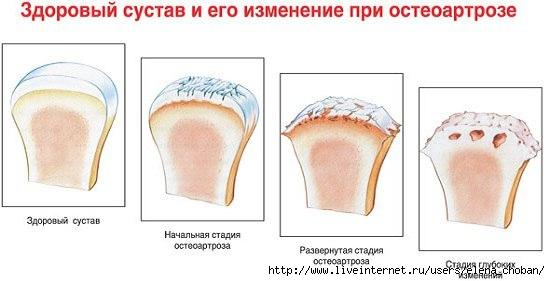 остеоартроз (550x281, 78Kb)