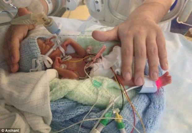 Младенец весом в 500 грамм победил смерть (620x428, 62Kb)