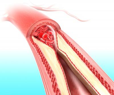 kak ochistit arterii (400x334, 28Kb)