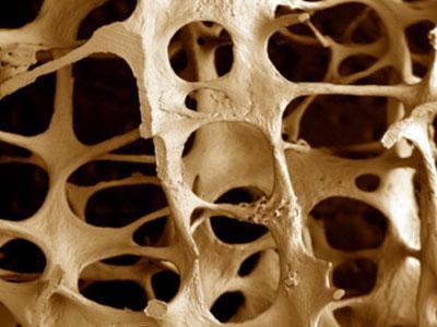 2971058_Osteoporoz (400x300, 22Kb)