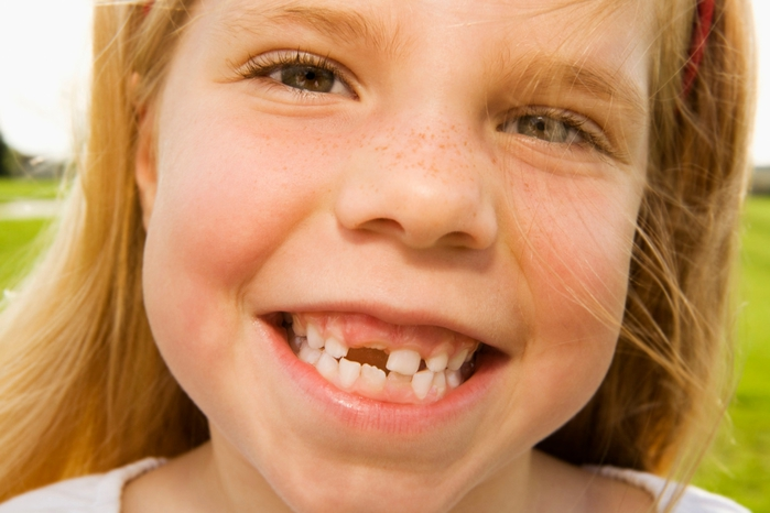 Восстановление зубов винирами (3) (700x466, 195Kb)