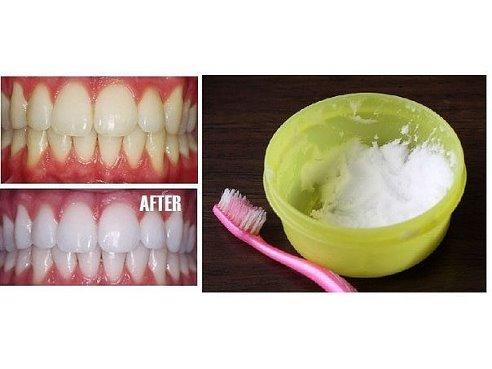 отбеливаем зубы дома - Самое интересное в блогах
