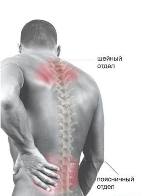 советы болит спина