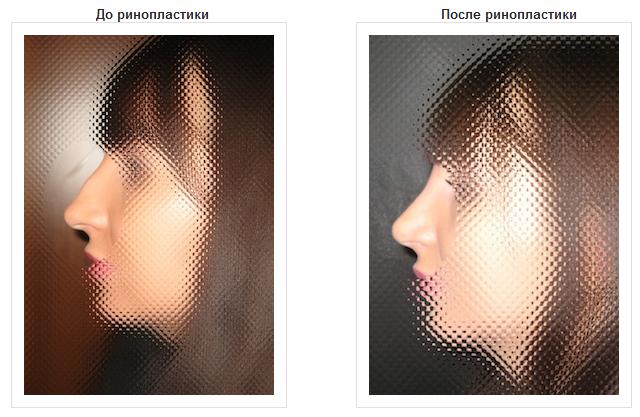 Ринопластика от клиники красоты и здоровья Westmed  (2) (640x417, 426Kb)