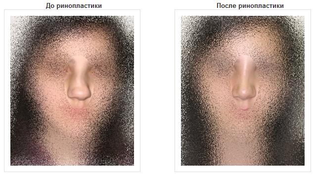 Ринопластика от клиники красоты и здоровья Westmed  (4) (633x358, 396Kb)