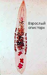opistorchis (165x262, 10Kb)