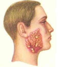 Грибковая инфекция актиномикоз/4574032_gribki (226x261, 8Kb)