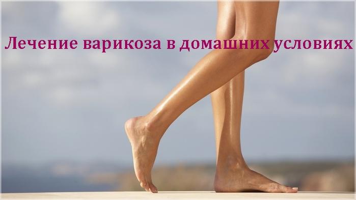 alt=Лечение варикоза в домашних условиях