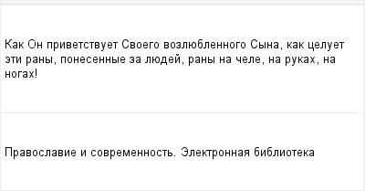 mail_96407415_Kak-On-privetstvuet-Svoego-vozlueblennogo-Syna-kak-celuet-eti-rany-ponesennye-za-luedej-rany-na-cele-na-rukah-na-nogah_ (400x209, 5Kb)