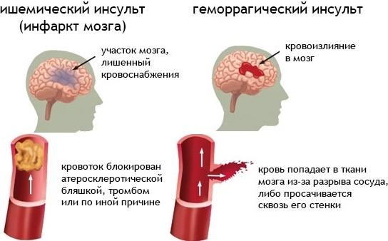 3407372_1456314478_post (544x338, 63Kb)