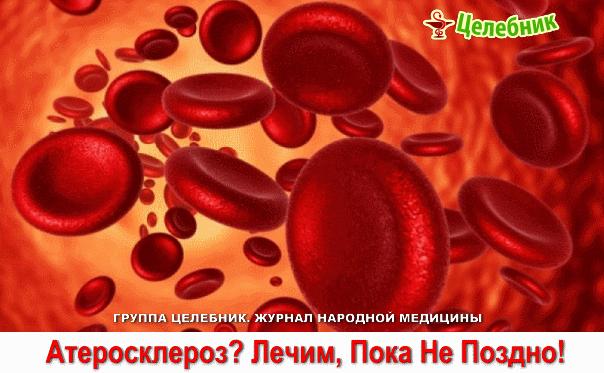 Атеросклероз (604x373, 112Kb)