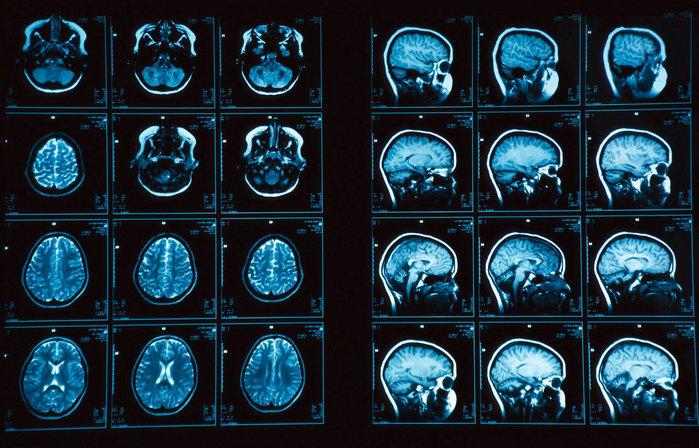 """alt=""""МРТ головного мозга с контрастным веществом""""/2835299__2_ (700x448, 133Kb)"""