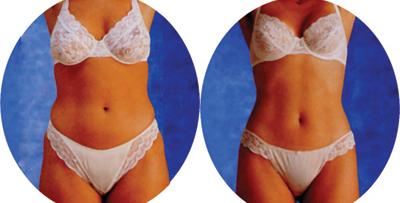 средство для похудения холин фолиевая кислота пластырь для похудения гинкго билоба уникальное средство похудения. уникальный секрет похудения пантотеновая кислота уникальные средства с имбирем для похудения имбирь -средства для похудения уникальное средство для похудения шоколад слим для похудения в аптеках как работает церебро слим церебро слим cerebro slim cerebro slim - уникальное средство для похудения cerebro slim (церебро слим) | отзывы на форуме серебро 2016 cerebro slim (церебро слим) для похудения: отзывы купить серебро слим