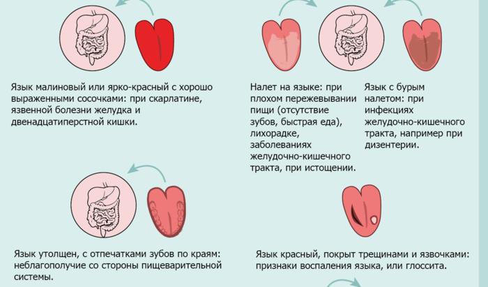 "alt=""Диагностика по языку""/2835299_Diagnostika_po_yaziky2 (700x412, 166Kb)"