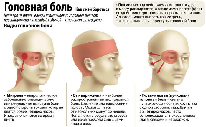 5239983_golovnaya_bol (700x431, 255Kb)