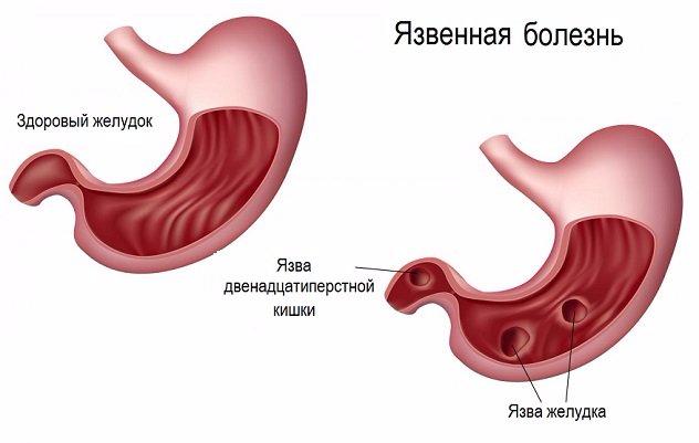 mozhet-li-pri-yazve-ne-bolet-zheludok (632x401, 129Kb)