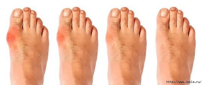 "alt=""Как лечить косточку большого пальца на ноге?""/2835299_Kak_lechit_kostochky_bolshogo_palca_na_noge0 (700x295, 106Kb)"